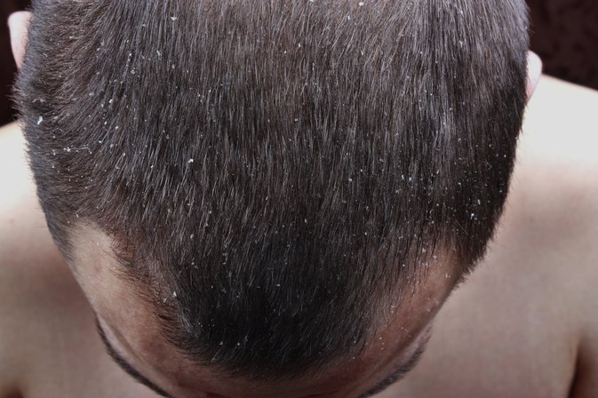 Image result for dry scalp