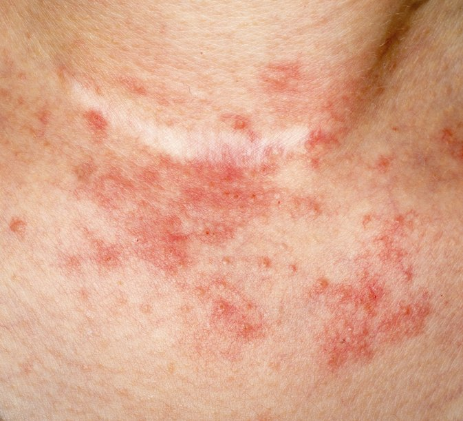 How to Remove Dead Skin From Psoriasis