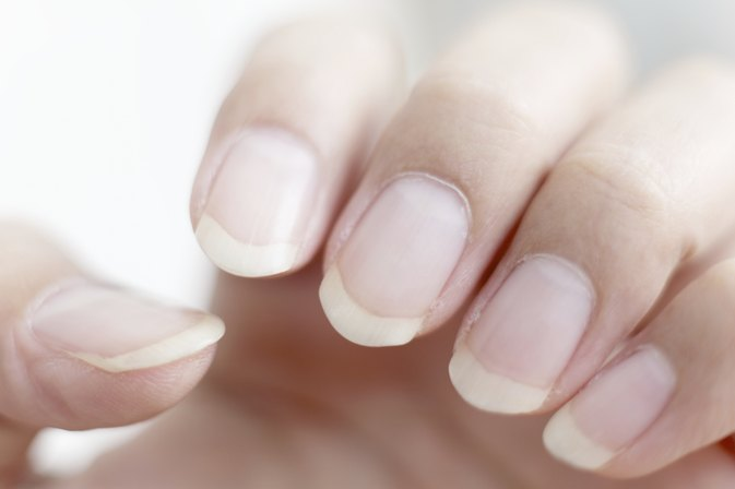 Are Ridged Nails And Dry Skin A Sign Of Vitamin Deficiency