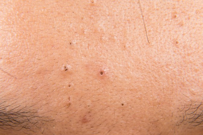How to Naturally Get Rid of Blackheads