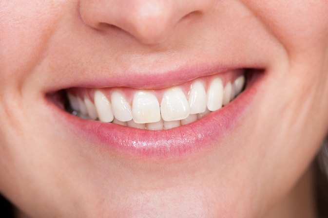 A Comparison of Teeth-Whitening Strips