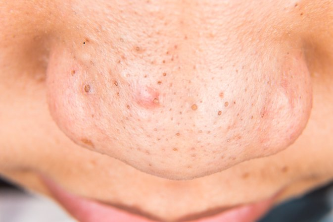 Deep Pore Acne