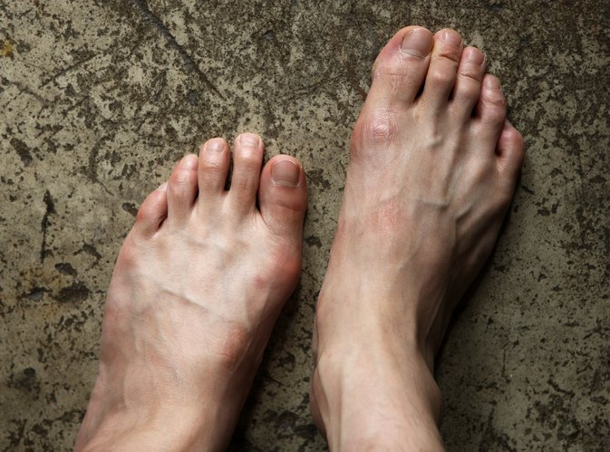 Exercises for Hallux Valgus