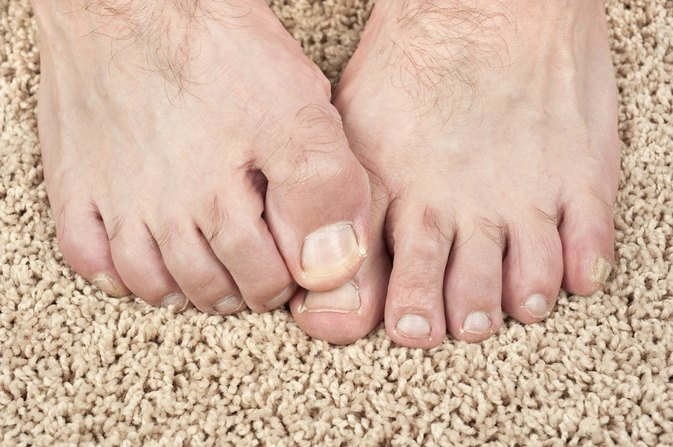 Would A Vitamin Deficiency Cause Split Toenails