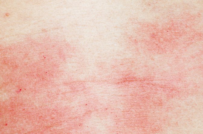 Itch Relief for Hives