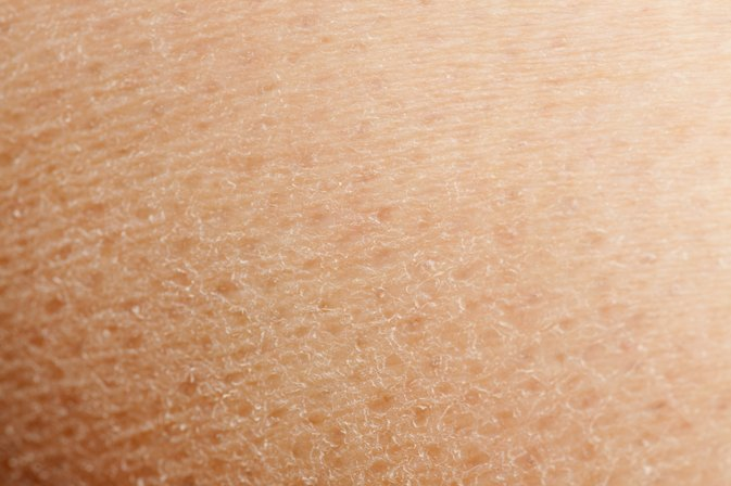 How to Improve Extremely Dry Skin