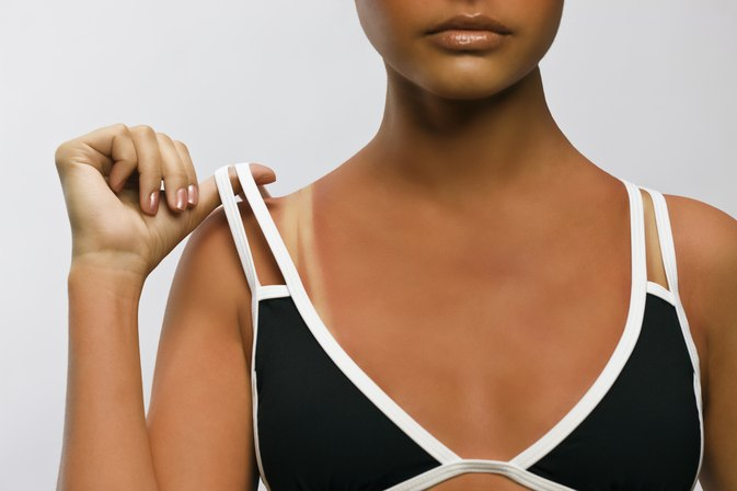 Can Vitamin E Oil Help Sunburns?