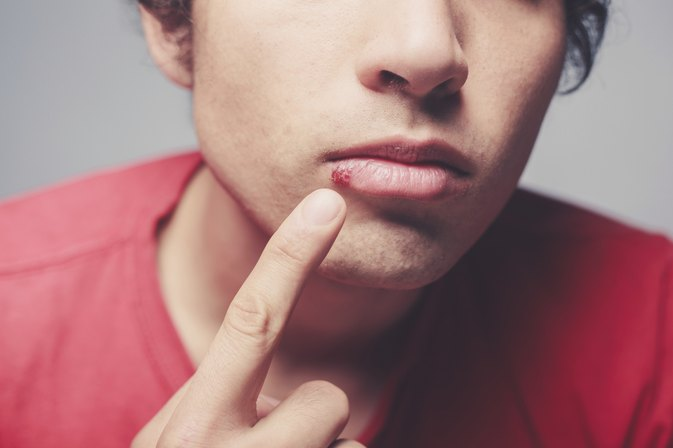 What Is a Cold Sore on the Lip?