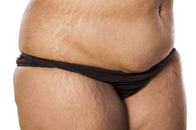 How to Cover Up Stretch Marks for African Americans