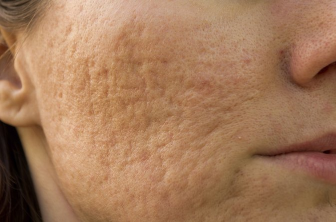 Rosacea and Enlarged Pores
