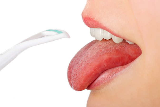 How to Treat a Coated Tongue
