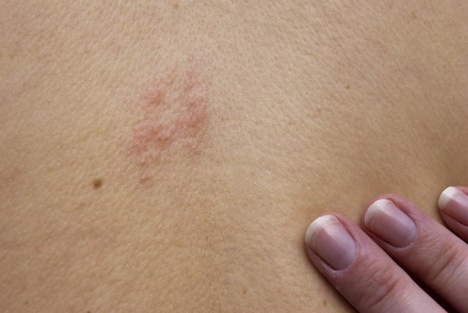 How to Get Rid of Shingle Scars
