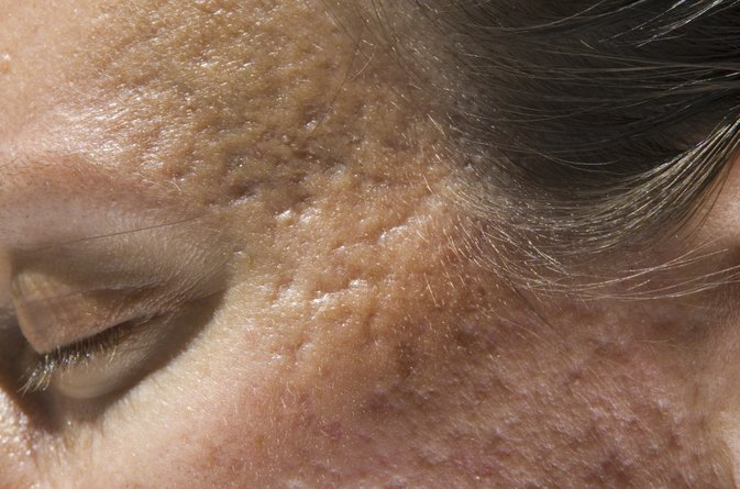 How Do I Get Rid Of Acne Craters In The Face Livestrong Com