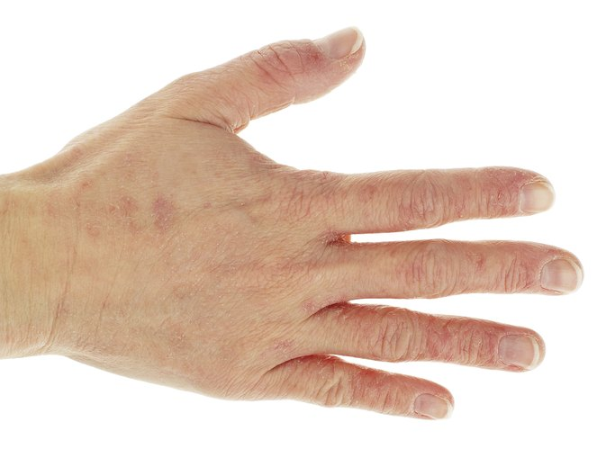 relationship between diabeates and trigger finger