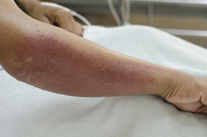 Causes of a Red Rash on My Arm