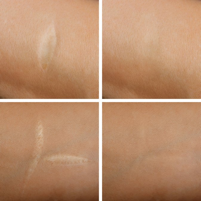 REWORKED:  5 Things You Need to Know About Dissolving Scar Tissue