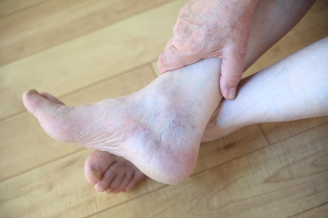 Cracked Heels & Nutritional Deficiency