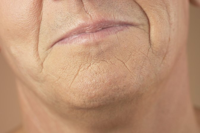 How to Remove Smoking Wrinkles