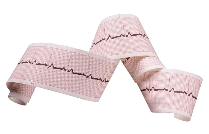 Heart Arrhythmia: Iodine or Magnesium?