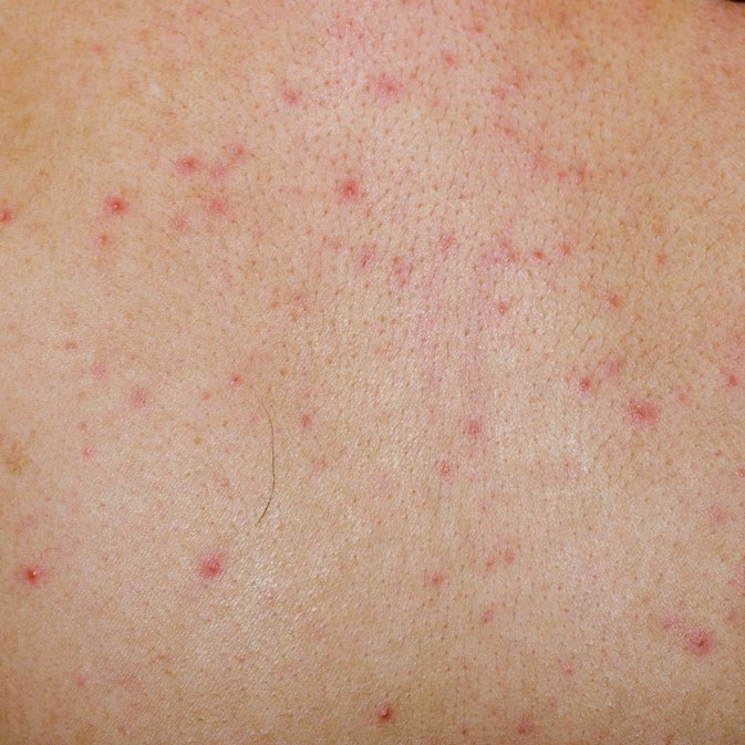 Does Gluten Sensitivity Cause a Rash?