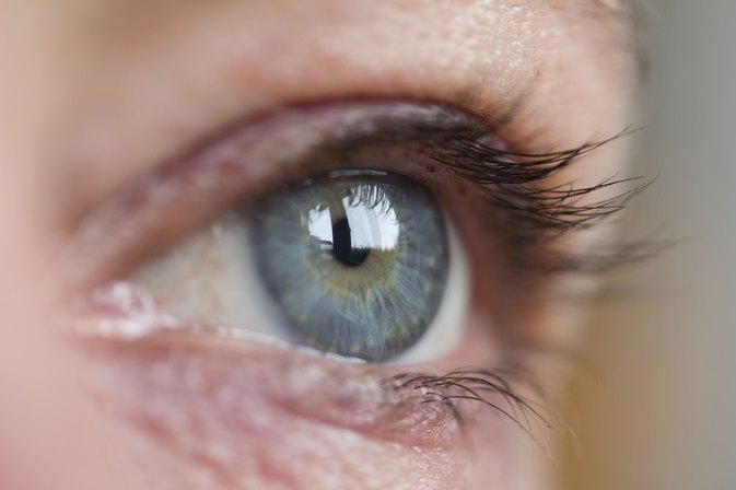 Dry Eyes From a Vitamin A Deficiency