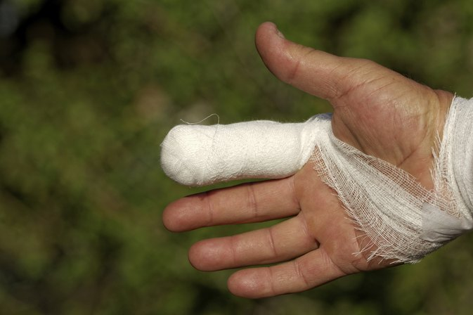 What is the Recovery Time for a Broken Finger in Baseball Players?