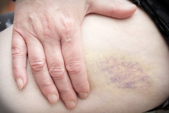 What Are the Causes of Bruising Easily?