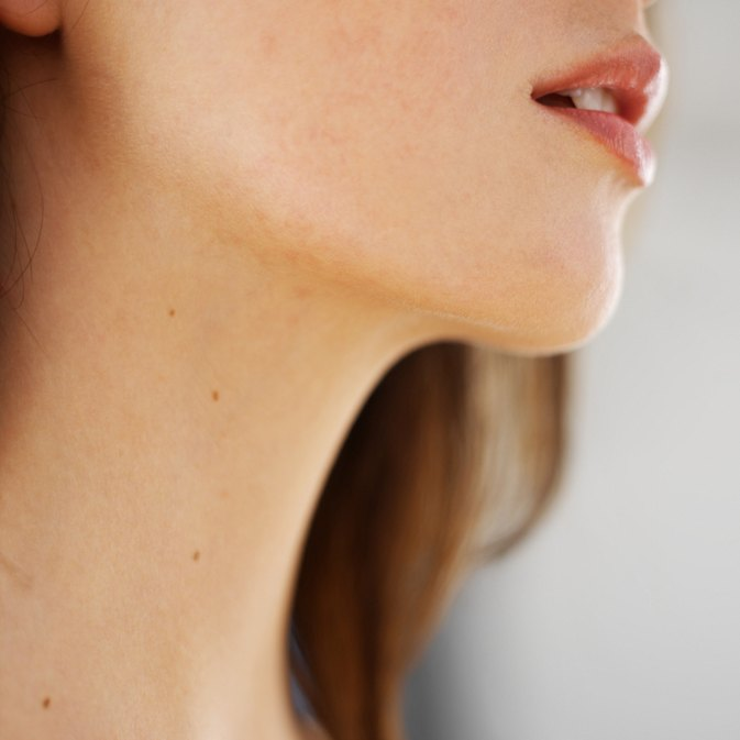 How to Lose Chin & Neck Fat