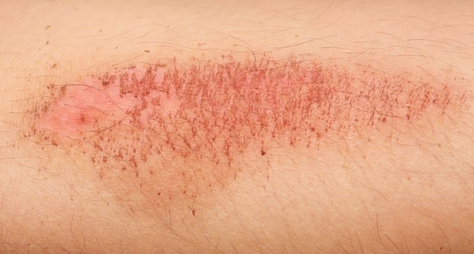 5 Things You Need to Know About Road Rash