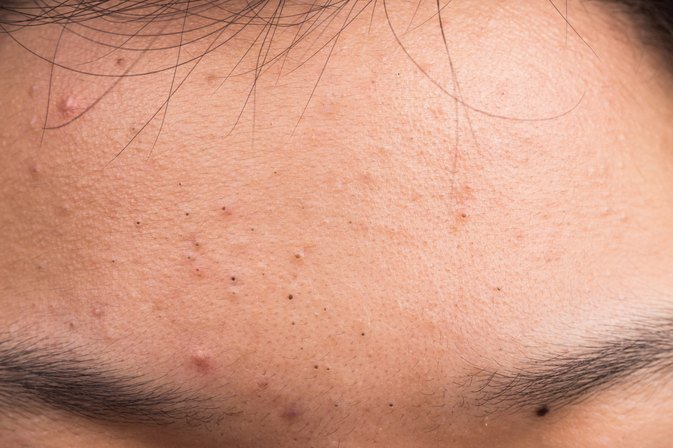 The Truth About The Most Common Acne Myths