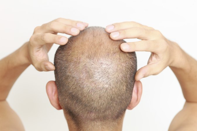 Scalp Exercises to Reduce Hair Loss