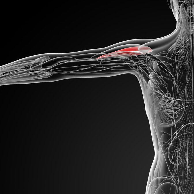 Exercising with a Deltoid Strain