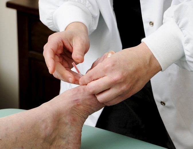 What Are the Acupuncture Points for Plantar Fasciitis?