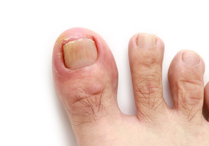 How Do I Know If I Have an Ingrown Toenail Infection? | LIVESTRONG.COM
