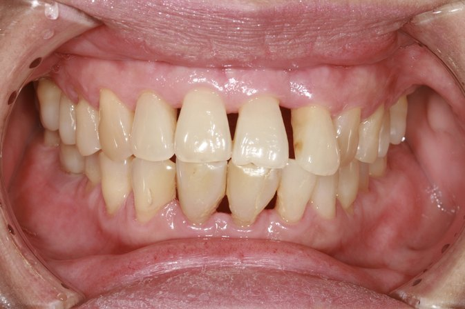 Home Remedies For Periodontal Disease Livestrong