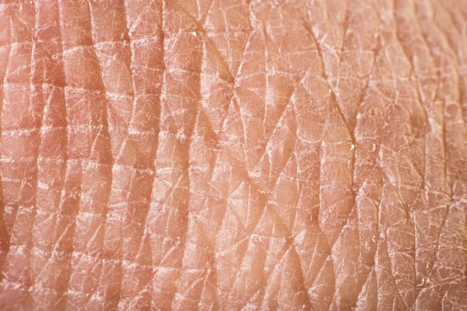 How to Treat Dry, Red Flaking Skin