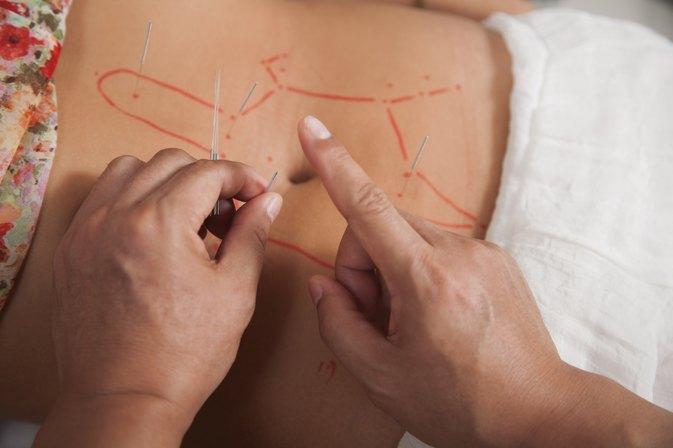 Acupuncture Points on the Body for Weight Loss