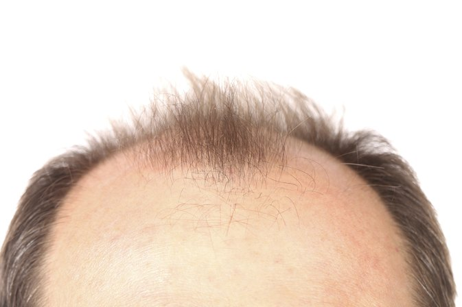 Retin-A Hair Loss Treatments
