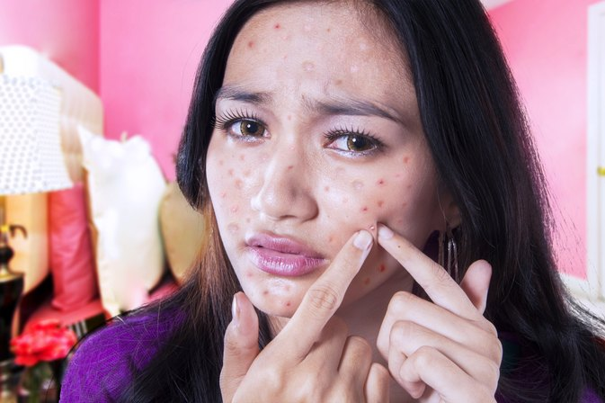 Can You Get Rid of Pimples with Vitamins?