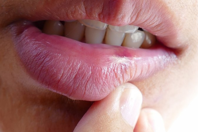 How Does a Cold Sore Heal?