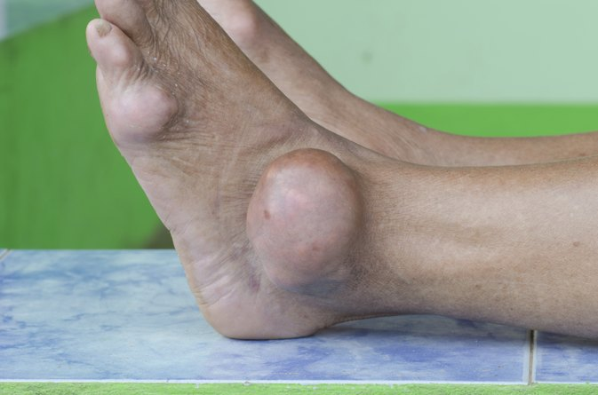 Home Remedies for Gout Flare Ups
