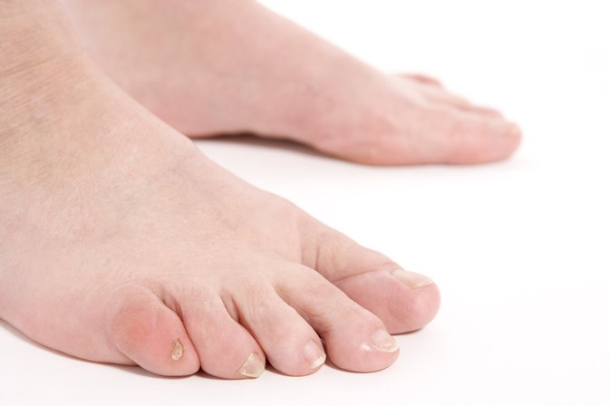 How to Care for a Swollen Toe