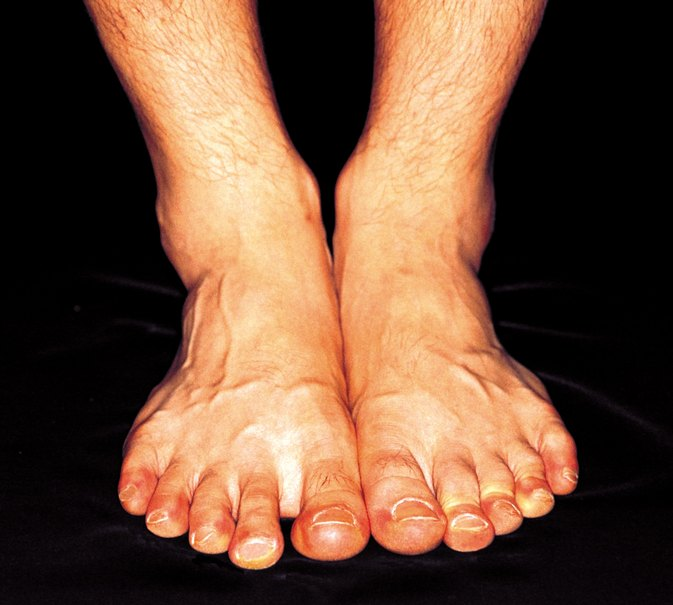 Does Sodium and Potassium Imbalance Lead to Swollen Ankles?