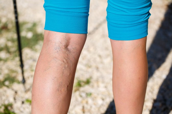 How to Cover Up Varicose Veins