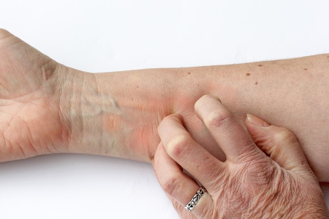 What Are The Causes Of Sudden Skin Itching