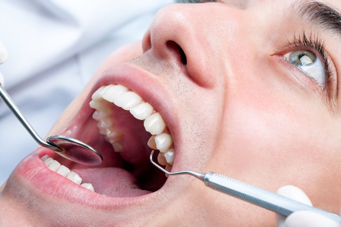 Alternatives for Root Canals