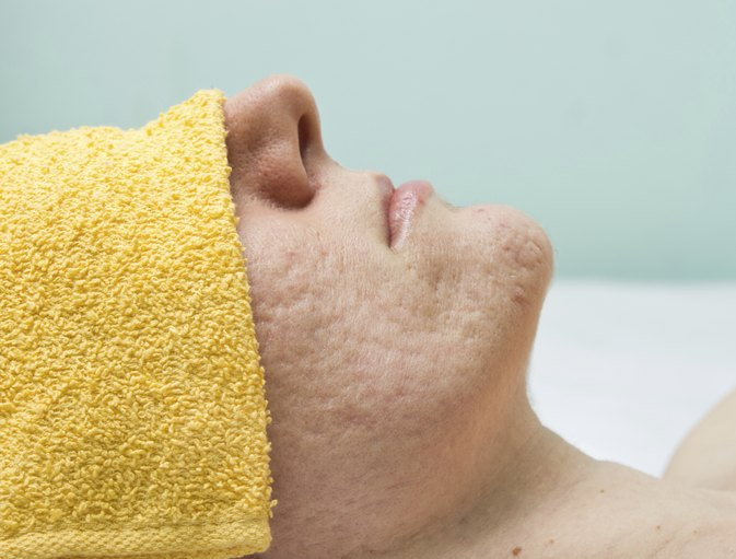how to get rid of old face scars