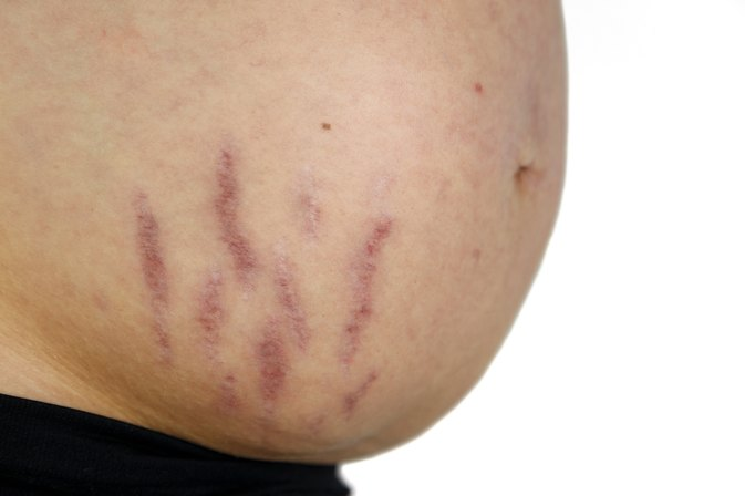What is the Cause of White Stretch Mark Indentations?