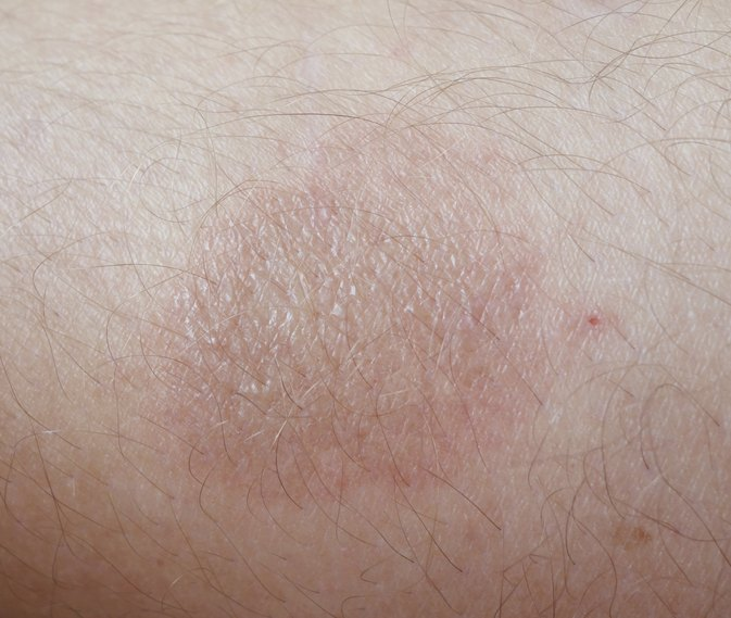 How To Treat A Rug Burn Livestrong Com