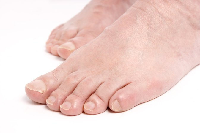 Foot Neuropathy, Fatty Liver & Iron Overload